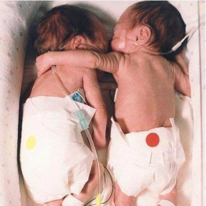 twin babies picture, one not expected to livejpg